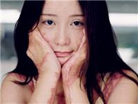 毁容少女周岩拍写真 曾因情感问题遭点火